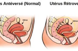 utérus rétroversé