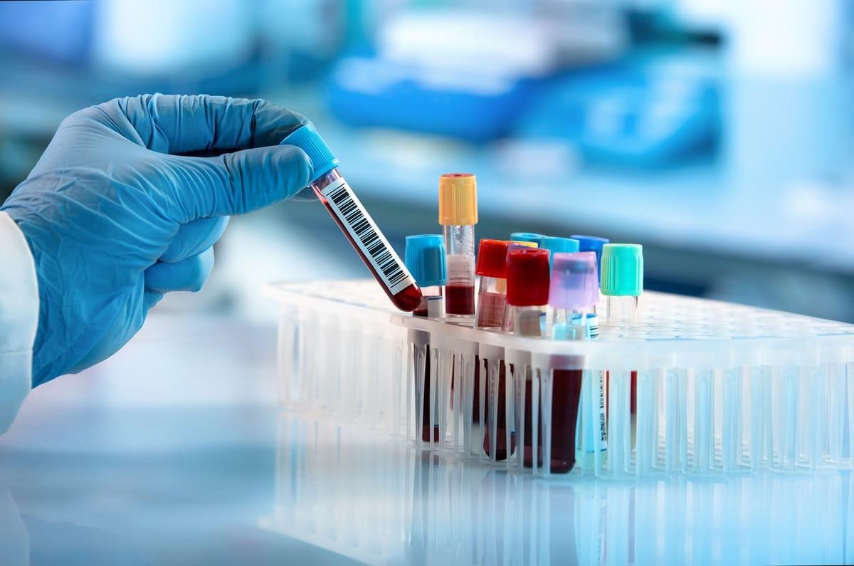 Le groupe sanguin 0 et le rhésus positif pourraient protéger mieux face à la Covid-19