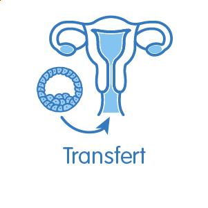 Transfert de l'embryon sélectionné